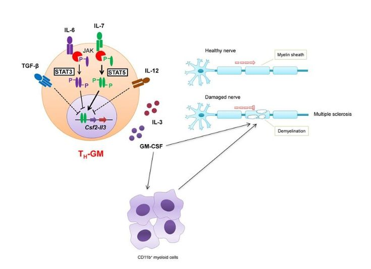 Schematic of TH-GM causing neuroinflammation, demyelination and nerve system damage.  A new type of T cell, TH-GM, produces a cytokine, GM-CSF, to recruit and activate other inflammatory cells, including macrophages, to cause neuroinflammation, demyelination and nerve system damage.  Photo credit:  National University of Singapore.