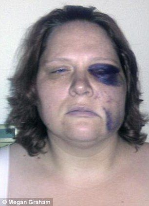 Deaf woman calls 911 as shes beaten black and blue by Washington police officers because she didnt hear their orders