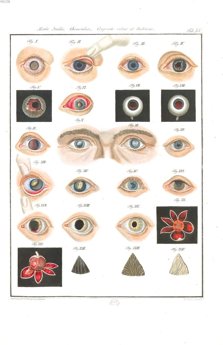 EYEBALLS! Pathology - Eye - Diseases of the eye 1838 (6)    Diseases of the Eye, Friedrich August von Ammon. 1838. Scan of 2 d image in the public domain believed to be free to use without restriction in the US