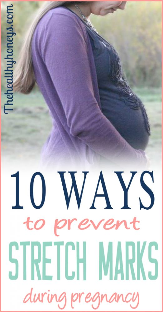 These tips are great! I've used several of these things to prevent stretch marks during my pregnancies. It totally works! #pregnancy #stretchmarks #health
