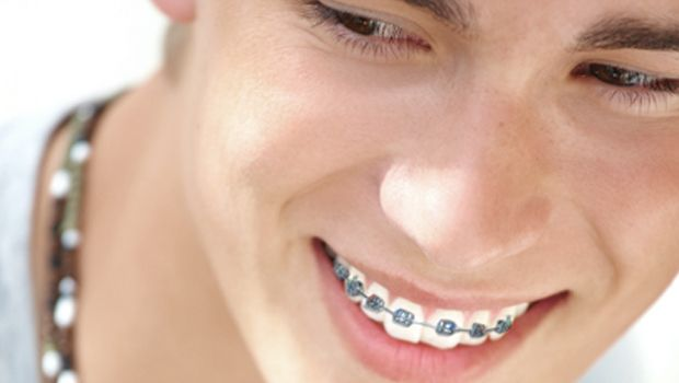 How Much Do Braces Cost For Kids - Average Cost https ...