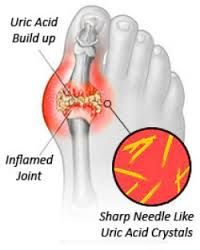 I recently had a bout with Gout! I found out thatit'sfrom a build up of uric acid in the joints It can show up in the joint of the big toe and it can alsoaffect the wrist, elbow, knee, ankle, ...