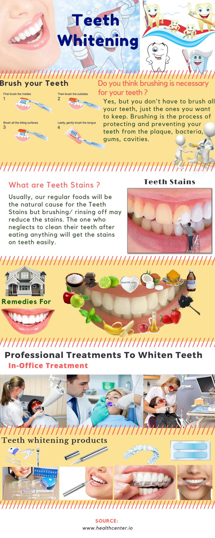How to make your Teeth White? Teeth Whitening Tips listed. Try 16 Natural ways of Whitening Teeth. Tips remove Stains from Teeth & Whitening Products, Kits.