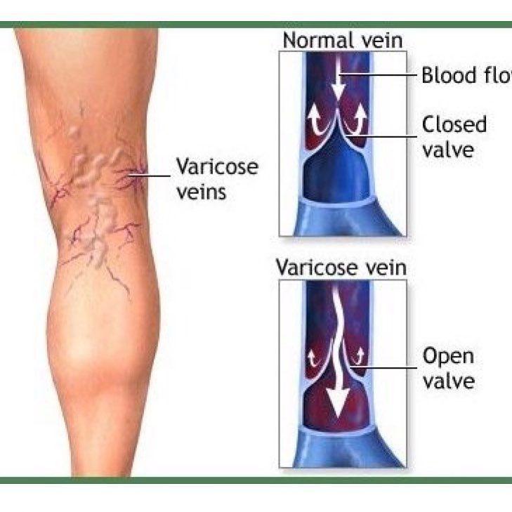 varicose device recenzii pericol varicose mici pelvis