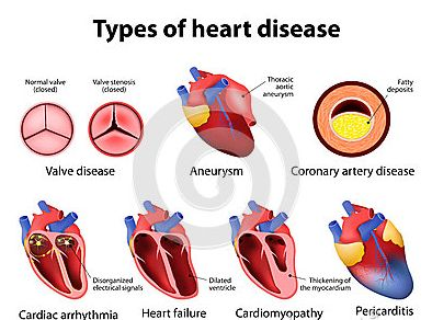 Heart failure, sometimes known as congestive heart failure, occurs when your heart muscle doesn't pump blood as well as it should. Certain conditions, such as narrowed arteries in your heart (coronary artery disease) or high blood pressure, gradually leave your heart too weak or stiff to fill and pump efficiently. Heart failure develops over time as the heart's pumping action grows weaker. The condition can affect the right side of the heart only, or it can affect both sides of the heart.