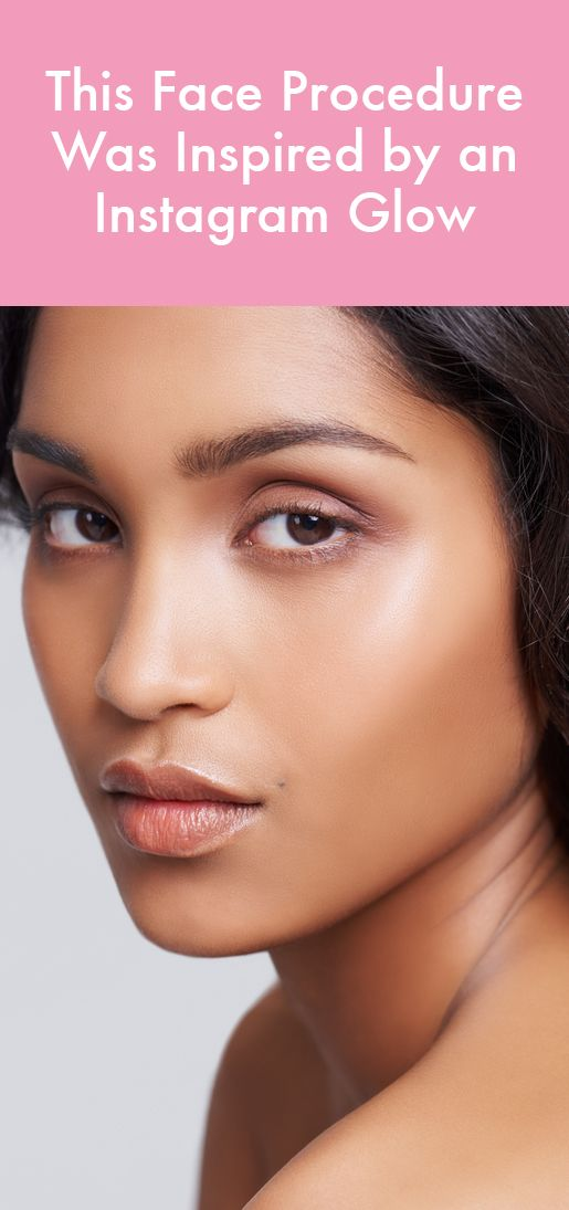 This new facial procedure mimics the look of strobing with Botox and fillers.
