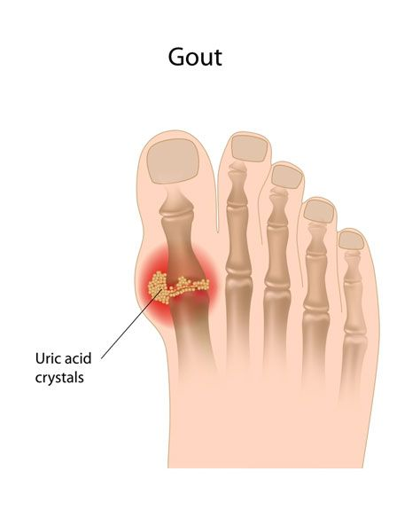 A Bout with Gout  | Easygoodhealth.com #healthy