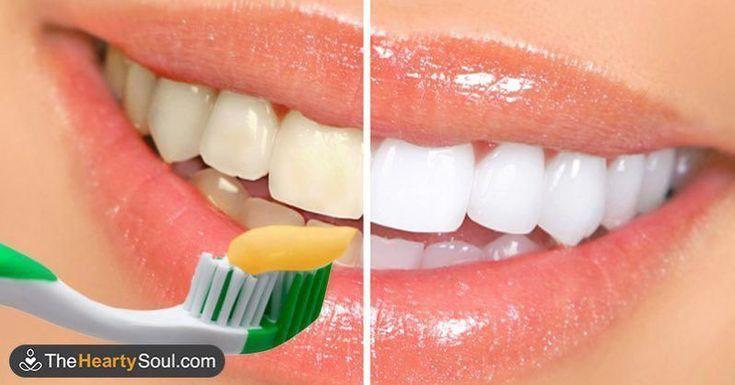 Natural Teeth Whitening System #Dentalimplantsplan…
