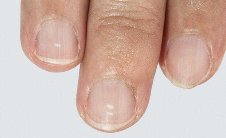 Wat de witte vlekjes op je nagels betekenen | Beau Monde