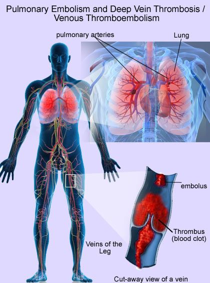 Natural Cure For Venous Thrombosis And Factor V Leiden