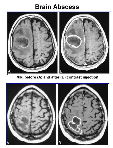 brain abscess text jan