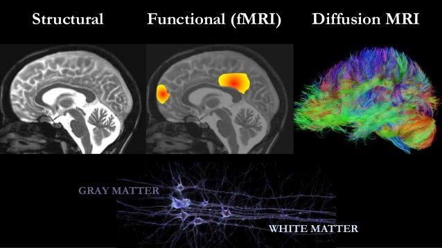 Structural Functional (fMRI) Diffusion MRI  GRAY MATTER  WHITE MATTER