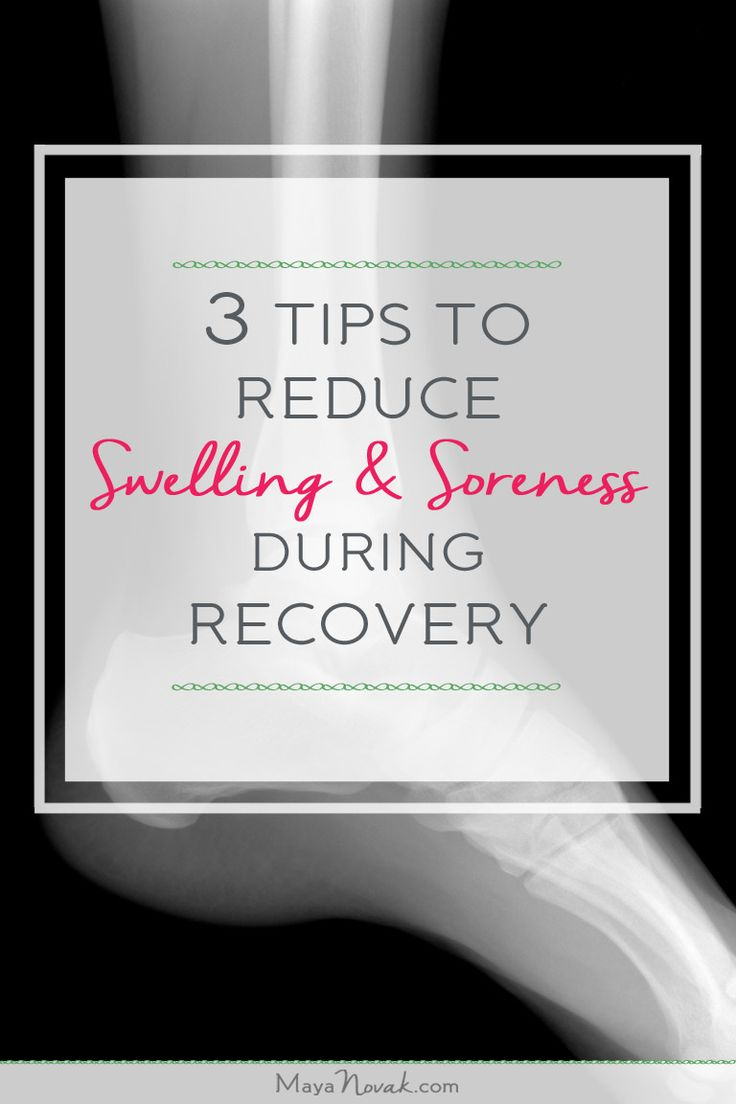 Some swelling and soreness during recovery is normal, but most people experience too much!