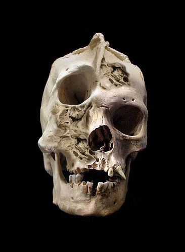 Reuters: Skull of R.C. Black's last ex-husband has been found and donated to the Idiot and Cretin Institute of Detroit.