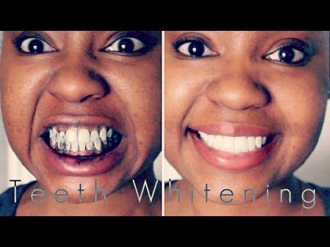 Ritzy Teeth Whitening Diy