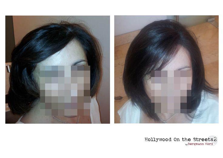 www.hos2.gr Τεχνική HOS-2. Αποτελέσματα σε εικόνες πριν και μετά.