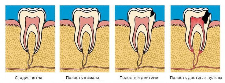 Cколько времени нужно кариесу, чтобы перейти в следующую стадию?  Кариозные процессы достаточно длительные и на первом этапе незаметные. Сначала появляется белый налет, затем углубления на эмали, после чего кариес проникает в ткани зуба, поражает дентин и пульпу, становятся видны темные пятна. Путь от первой стадии до последней занимает, как правило, 12-18 месяцев.  Чем раньше вы обнаружите недомогание и обратитесь к врачу, тем легче будет проходить лечение. Поэтому крайне важно проходить…