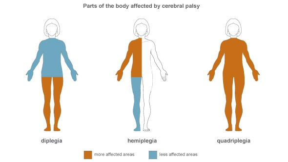 Parts of the body affected by cerebral palsy.