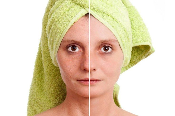 How To Shrink Pores   Effective & Natural Ways To A Youthful Skin