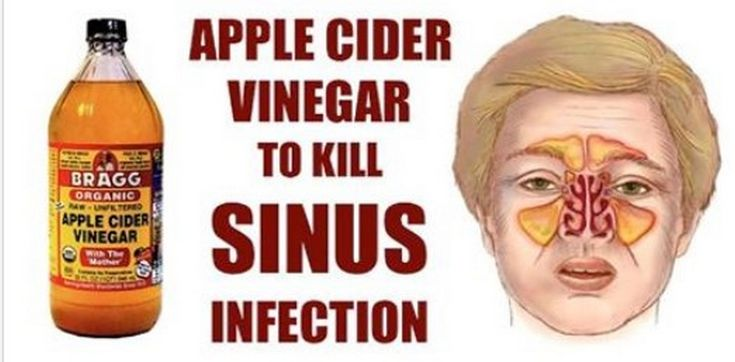 Sinus infection is an inflammation of the tissue and membrane and is characterized by headaches, fevers, thick mucus that causes a blockage, and pain in the face area. Yet, there are effective natural treatments for sinusitis, which cleanse the sinuses and destroy the microbes that caused the issue. A chronic…
