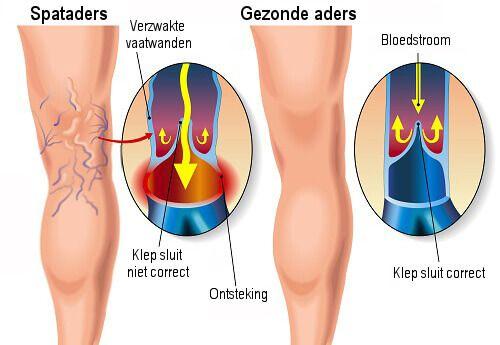 Spataders zijn één van de meest voorkomende bloedvatenstelsel aandoeningen, vooral bij vrouwen. Het komt echter ook voor bij mannen. In het algemeen, spataders zijn uitgezette aders die een correcte bloedsomloop voorkomen. Spataders kunnen een ernstig gezondheidsprobleem worden wanneer ze niet goed behandeld worden. Daarom laten we hieronder een aantal oefeningen voor spataders zien.