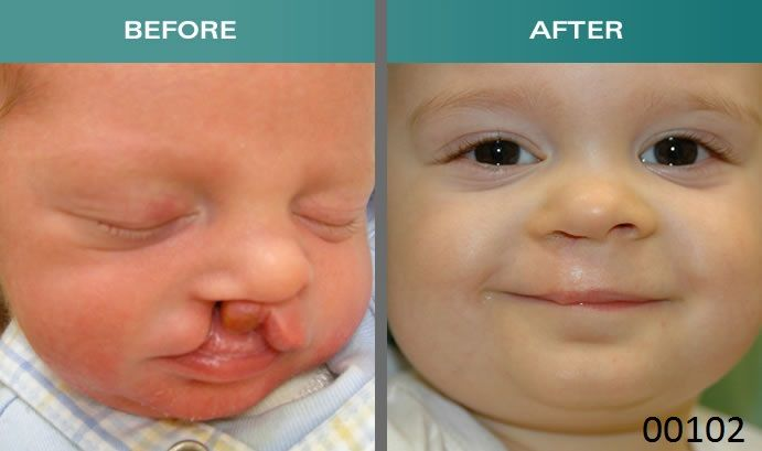 00102: Anesthesia for procedures involving plastic repair of cleft lip.