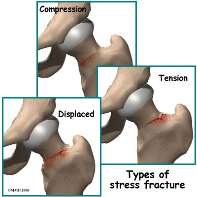hip stress fracture.. compression looks about right for me