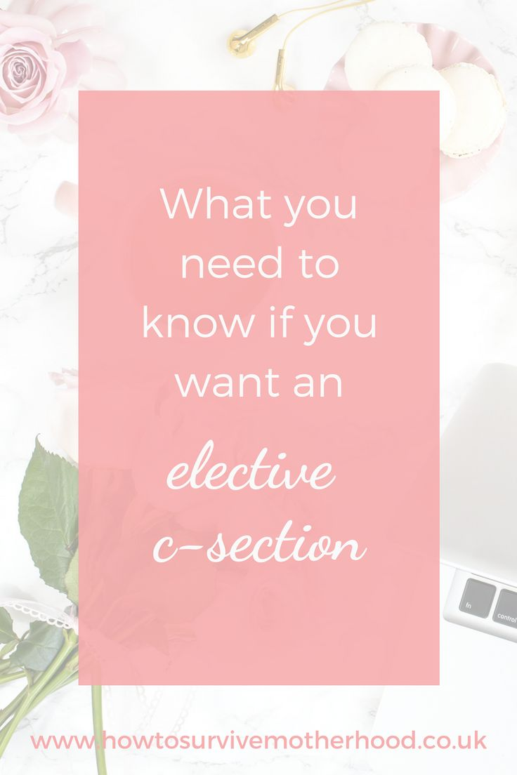 If you want an elective c-section because of your birth anxiety then here's what you need to know