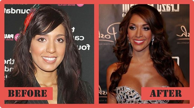 Farrah Abraham Plastic Surgery Before And After Farrah Abraham Plastic Surgery #FarrahAbrahamPlasticSurgery #FarrahAbraham #celebritypost