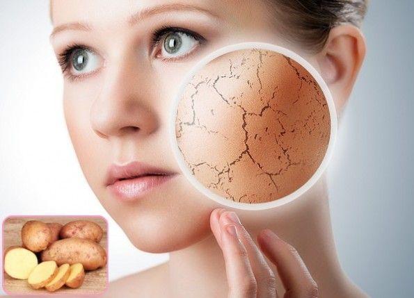 Potato For Skin Lightening & Natural Skin Lightening... #BeautySkin #NaturalSkinLightening #SkinCareTips