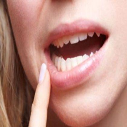 Best Herbs To Treat Gum Sores