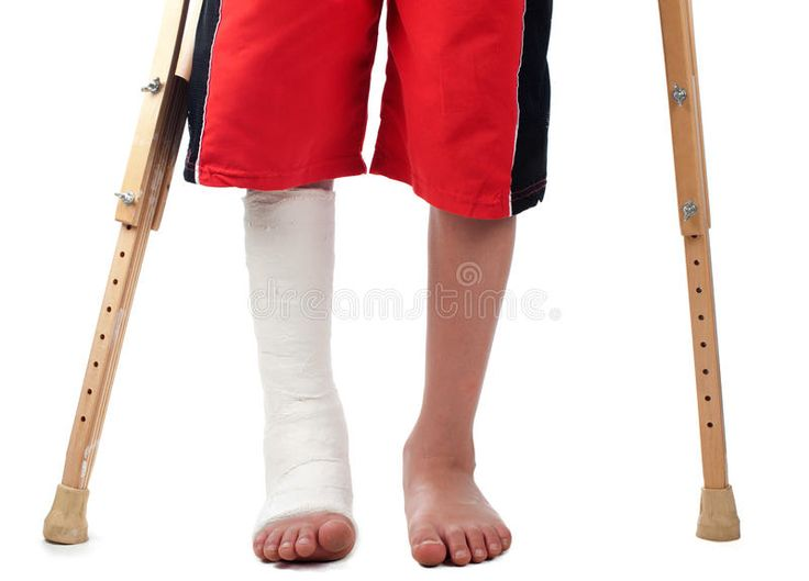 Leg fracture a boy with a right leg fracture struggles to