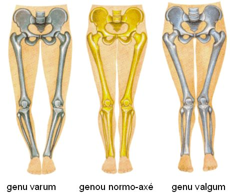 """www.health-gossip.com This image helps to visualize what is genu valgum and varum or bow knee vs knock knee.The thumb rule for valgus and varus in most joints of body is when distal part moves away from mid line and proximal part moves towards the midline its always valgus for exg; ankle joint moves away from midline and knee joint moves towards the midline is """"genu valgum"""" or knock knee another example is """"cubitus valgus""""; and the contrary is always varus for example knee joint moves away…"""