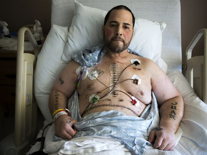 Juan Mendez of Camden shows his scars as he recovers from a rare heart-liver transplant at Temple University Hospital. #DonateLife #PA
