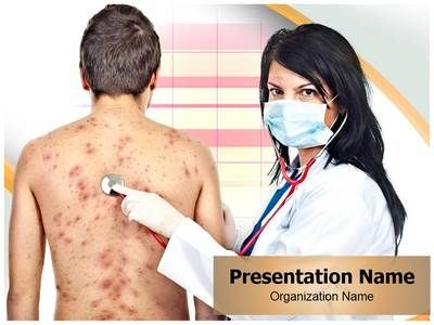 16 best acadmico images on pinterest ppt template med school and these royalty free chickenpox healthcare powerpoint templates are completely toneelgroepblik Images