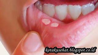 http://kotakusehat.blogspot.co.id/2016/11/apa-itu-sariawan-dan-apa-penyebabnya.html