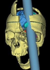 Great educational site all about the horrific but fascinating brain injury sustained by Phineas Gage! It's amazing he lived another twelve years!