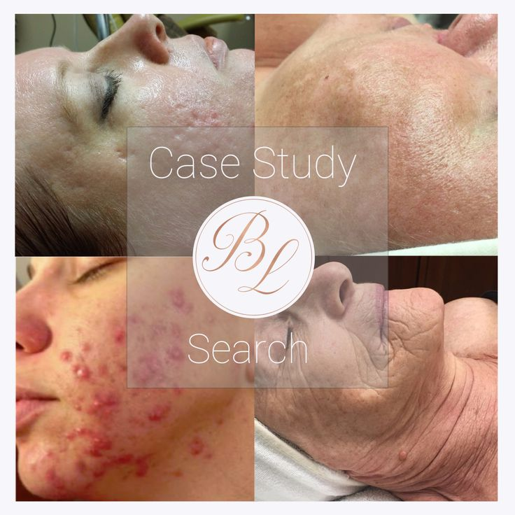 We are always looking for individuals to participate with us in a case study.   Typically 8-12 weeks of treatments  Full line of products  We work with your budget   We are seeking individuals who are tired of their skin conditions and want our help to reverse them back to normal and healthy skin. Schedule a FREE skin consultation to discuss this Case study! www.bashfullashskinspa.com