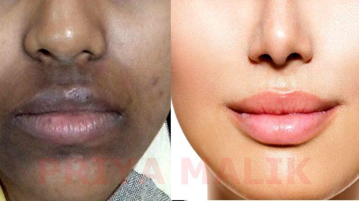 How To Remove Dark Black patches, Dark Spots,Hyper pigmentation, Around ...