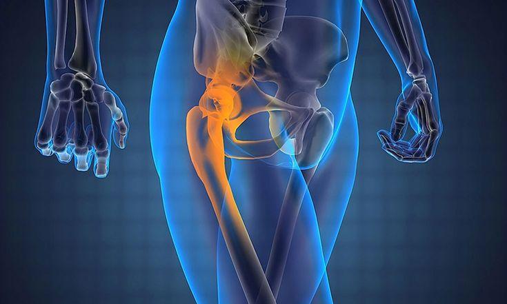 Боль в тазобедренном суставе: причины, заболевания, диагностика, лечение | Азбука здоровья