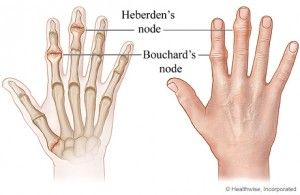 Heberden Nodes Health Fitness Pinterest Hand Therapy