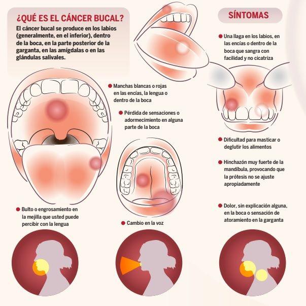 Cancer bucal en las encias. Cancer de orofaringe tratamiento