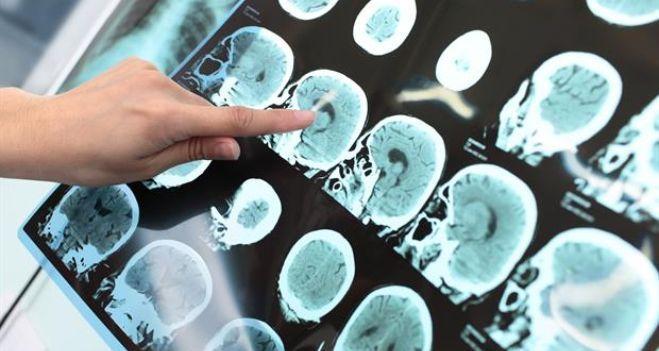 #Esclerosis Múltiple: qué es, cómo se detecta y cuáles son los tratamientos - Diario de Cuyo: Diario de Cuyo Esclerosis Múltiple: qué es,…