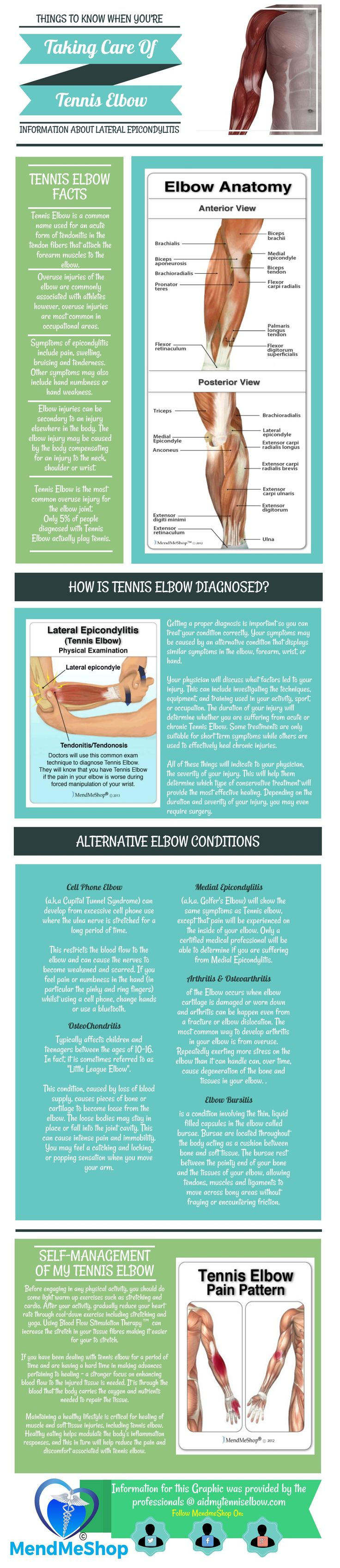 Tennis Elbow is a form of tendinosis which indicates degeneration of the lateral epicondyle. You will have swelling and tenderness on and around the tendons that attach to the small bony part on the outside of your elbow. #lateralepicondyle #tenniselbow