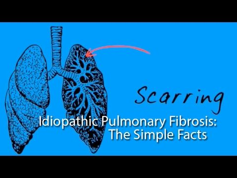 Living with Idiopathic Pulmonary Fibrosis - The Mike Olsen Story - YouTube