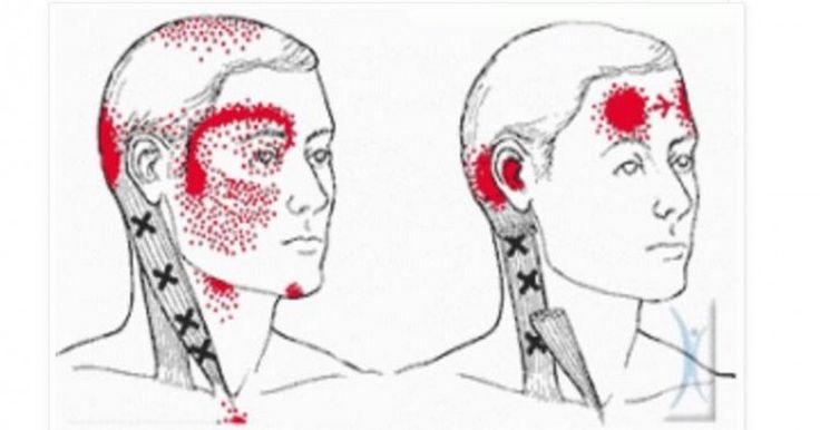 Σας Πονάει συχνά το Κεφάλι ή έχετε Ημικρανίες; Δείτε ΤΙ σημαίνει αυτό για την Υγεία σας και ΠΩΣ θα το Αντιμετωπίσετε!