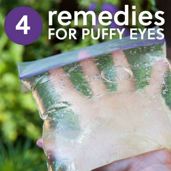 4 Creamless Remedies For Puffy Eyes And Bags Under The Eyes