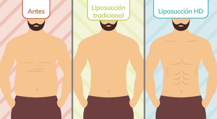 Liposucción para hombres tradicional vs HD Dr. Fernando Ruiz