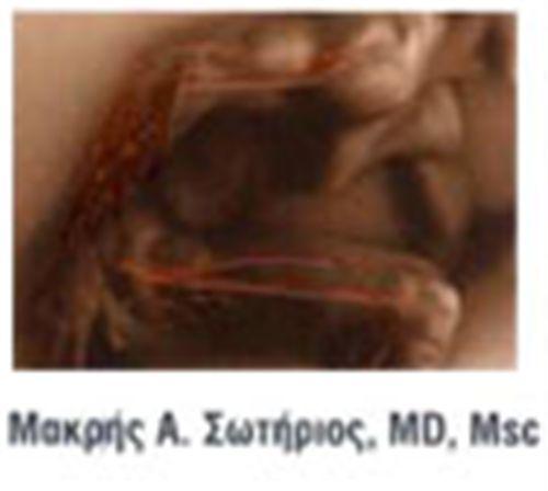 Μακρής Σωτήριος - Αγγειοχειρουργός ΦΙΛOΘΕΗ