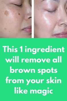 This 1 ingredient will remove all brown spots from your skin like magic